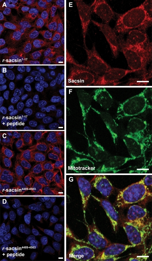 Sacsin has a predominantly cytoplasmic localization with partial mitochondrial overlap. Immunofluorescent detection of sacsin in SH-SY5Y cells using r-sacsin1–17 (A, B) and r-sacsin4489–4503 (C, D). The antibodies were competed with immunizing peptide in (B and D). (E–G) Sacsin distribution (red) partially overlapped with a fluorescent mitochondria marker (green). Cells were imaged by laser scanning confocal microscopy. Microscope settings were constant for acquisition in the peptide competition experiments. Scale bar = 10 µm.