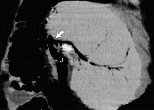 Pneumobilia in a 3-year-old girl, 11 months after living-related liver transplantation to treat biliary cirrhosis. Oblique sagittal minimum intensity projection image demonstrates pneumobilia in the transplanted liver. An anastomosed site (arrow) with jejunum (J) is delineated in this patient.