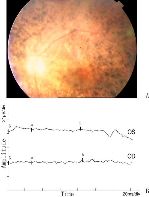 Fundus photographs and ERG of the proband in the Chinese arRP family. The features of waxy-pale disc, arteriolar attenuation, and bone-spicule pigment deposit in the mid-peripheral retina are shown in A. The full-field ERG in the proband in B, either a-wave or b-wave has obvious reduced amplitude and prolonged response time in both eyes.
