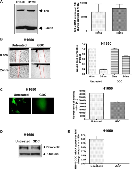 Down-regulation of Shh autocrine signaling in NSCLC cell lines led to the reduction in tumor cell migration, invasion, and tumorigenesis:A; both H1650 and H1299 cells expresses high levels of Shh mRNA compared to NHBE cells, and both cell lines have high Shh protein expression. B and C shows reduction in cell-invasion and the colony-forming ability of H1650 cells following treatment with Shh inhibitors such as GDC-0449 (20 nM). (D) Western blot of H1650 cells before and after treatment with GDC-0449 (20 nM) for the expression of fibronectin. (E) qRT-PCR for the expression of E-cadherin and ZEB1 mRNA in H1650 cells after treatment with GDC-0449 (20 nM) showing reversal of EMT compared to untreated H1650 cells. (*  =  p<0.05).