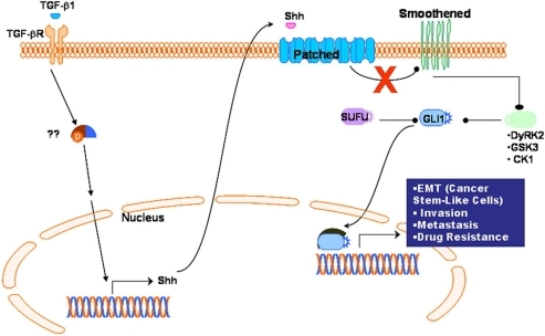 Schematic diagram showing activation of TGF-β receptor by TGF-β1which leads to the up-regulation of Shh expression.The secreted Shh protein then activates Hh signaling pathway by inhibition of Patched (smoothened suppressor), which will repress smoothened, resulting in the activation of GLI1 and its translocation to the nucleus. GLI1 as a Hh transcription factor then could activate Hh target genes, which leads to the acquisition of EMT phenotype, and contributing to increased invasion, metastasis and drug resistance.