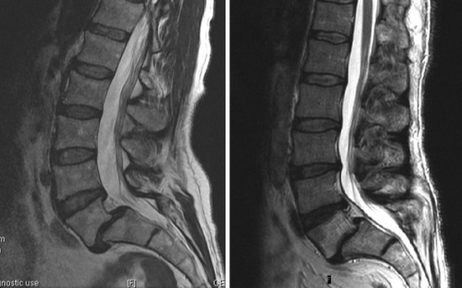 mild anterior listhesis Spondylolisthesis occurs when one vertebra slips forward on the adjacent vertebrae this will produce both a gradual deformity of the spine and also a narrowing of .