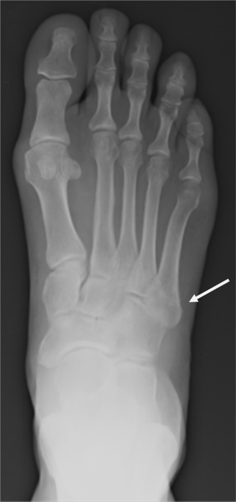 radiography of right foot revealing a well healing fift | open-i, Muscles