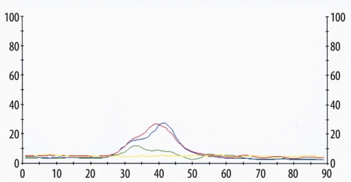 A typical single swallow of a patient 24 hours after tonsillectomy after Oxycontin was administered. Green line – MS location, blue line – SUB location, red line – LSM location, yellow line – TZ location. Normal sharp apexes are gone, m. trapezius is absolutely relaxed. X-axis (horizontal) – time in ms, Y-axis (vertical) – electrical amplitude in μV.