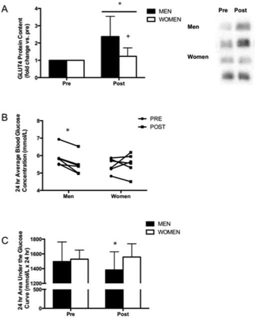 Improved indices of blood glucose control in men following very low-volume SIT.GLUT4 protein content measured in muscle biopsy samples obtained from the vastus lateralis before (PRE) and 72 h after (POST) 6 week SIT in men and women (A). Individual 24 h average blood glucose concentration (B) and 24 h blood glucose area under the curve (AUC) measured before (PRE) and 48–72 h after (POST) 6 week SIT in men and women using continuous glucose monitoring (CGM). Values are means ± SD (n = 7 per group for muscle data, n = 6 per group for CGM data). Representative Western blots for 2 men and 2 women are shown for GLUT4. *P<0.05, pre- vs. post-training; +p<0.05, men vs. women at same time point.