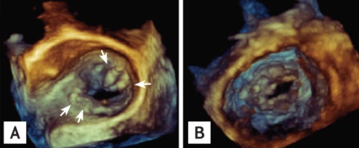 Three-dimensional transesophageal echocardiography images of a stenotic mitral valve (A) from the left atrium and (B) from the left ventricle. Arrows indicate severe calcifications.