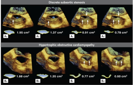 Real-time three-dimensional transesophageal images, showing the difference in the shape of left ventricular outflow tract (LVOT) between discrete subaortic stenosis (DSS) and hypertrophic obstructive cardiomyopathy. (A) The DSS images show the almost oval or flat shape of the LVOT (Ad) and subaortic membrane with small fenestration at left upper site of membrane (Aa and Ab, arrow). The thin membranous structure changes its angle to decrease the LVOT area along the blood stream (Ac and Ad, arrows). (B) In hypertrophic obstructive cardiomyopathy, the shape of the LVOT is a V formation or two separate open spaces due to systolic anterior motion of mitral anterior leaflet (Bc and Bd, arrows).