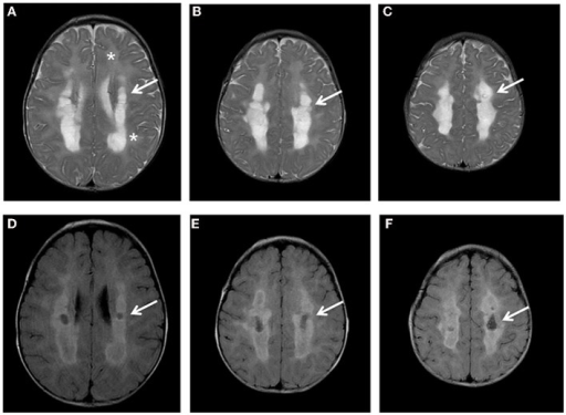 Brain MRI. Axial T2 (A-C) and FLAIR images (D-F) show diffuse hyper intensity of the white matter (A: asterisks) more prominent in the posterior periventricular and deep regions (A-C: arrows) with evidence of partial cystic degeneration and cavitations in FLAIR sections (D-F: arrows).