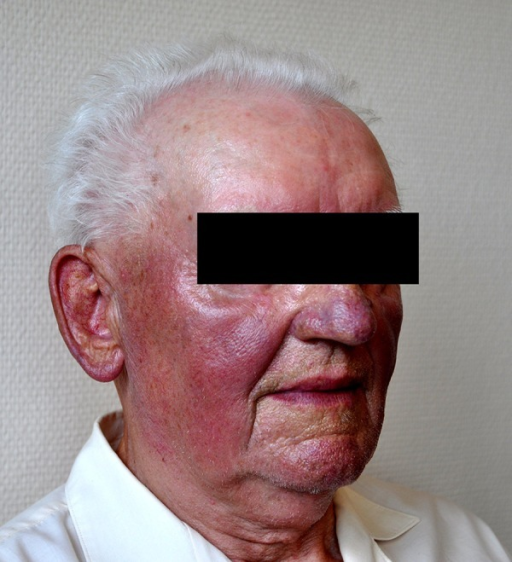 Amiodarone Induced Blue Gray Pigmentation Ociated With Diffuse Erythema In 81 Year