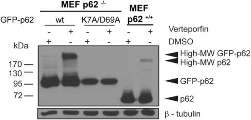 Effect of PB1 mutation on p62 crosslinking by verteporfin.p62−/− MEF cells expressing GFP-p62 wt or GFP-p62 K7A/D69 or p62+/+ MEF cells were exposed to 0.1% DMSO or 10 µM verteporfin for 4 h in complete medium. Cell lysates were immunoblotted for p62 and β-tubulin. The image presented is representative of at least 3 independent experiments.