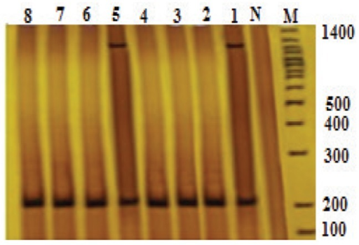 Result of the PCR assay for identification of K. pneumoniae magA and genes blaSHV-1agenesM, marker 100 bpN, negative controlNumber 1, positive control strains of K. pneumoniaeNumbers 1 to 8, isolated K. pneumoniae with blaSHV-1a geneNumbers 2 to 8, isolated K. pneumoniae from patientsNumbers 2, 3, 4, 6, 7 and 8, isolated K. pneumoniae without magA geneNumber 5, isolated K. pneumoniae with magA gene