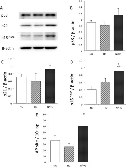Effect of high glucose on p53, p21, p16INKa, and DNA ladder on Apurinic/apyrimidinic (AP) sites.HUVECs were cultured with constant high glucose (HG) and intermittent glucose (N/HG) introduced in Fig 1. Namely, N/HG was stimulated twice with HG (at 4-hour intervals) for a total of 4 hours daily (9 a.m. to 11 a.m., 3 p.m. to 5 p.m.), and was cultured in NG in other time of the total 4-hour HG stimulation. (A)-(D): Effect of high glucose on p53, p21, p16INKa protein. (E): Effect of continuous and intermittent high glucose on endothelial DNA damage on Apurinic/apyrimidinic(AP) sites. *p<0.05; **p<0.01 vs. NG; #p<0.05 vs. HG. The values of the three independent experiments are mean ± S.D.