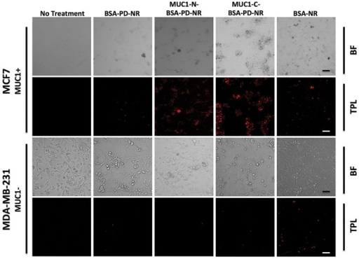 Two-photon luminescence imaging.Two-photon luminescence (TPL) confocal imaging of MCF-7 and MDA-MB-231 breast cancer cells 24 h post treatment with NRs. Brightfield (BF, grayscale) and AuNR TPL images (red) reveal specific targeting in MUC1+ MCF-7 cells. Scale bar = 50 μm.