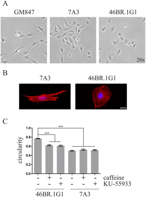 Correction of LigI defect affects cell morphology.A) Time-lapse imaging of cell migration. Cells were seeded at low density and monitored by time-lapse microscopy as described in Materials and Methods. Representative still images of control fibroblasts (GM847), complemented 7A3 expressing wild type LigI and LigI-deficient 46BR.1G1 cells are shown. B) Distribution of actin cytoskeleton. Cells were grown on coverslips and decorated with TRITC-conjugated phalloidin. Nuclei were counterstained with DAPI. C) Quantification of morphological differences between 46BR.1G1 and 7A3 cells was determined by measuring the average ratio between the short and long axes of the cell (circularity). Circularity was also measured in the presence (+) of caffeine and KU-55933 as described in Materials and Methods. At least 100 cells/conditions for each cell line were analysed. Bars show mean ± SEM. *** P < 0.001.