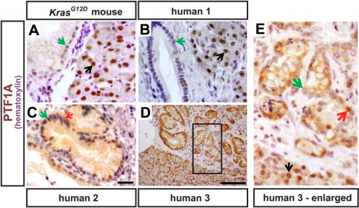 PTF1A expression in rare epithelial cells of human PanINs.(A) IHC for PTF1A from a KrasG12D mouse pancreas 9 months after TM administration (0.17 mg/g). (B–E) IHC for PTF1A on human pathology samples. Black arrows indicate normal acinar cells expressing PTF1A; green arrows highlight PanIN epithelial cells that do not express PTF1A; red arrows indicate rare PanIN epithelial cells that retain trace PTF1A expression. Scale bars: (A–C) 25 μm; (D) 100 μm.DOI:http://dx.doi.org/10.7554/eLife.07125.004