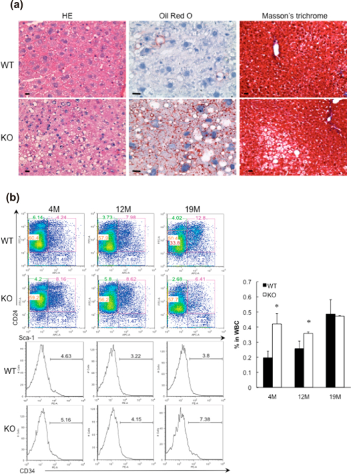 GADD34 -deficient mice accumulated a fat in liver with aging.(a) Sections of the liver of 15 M old male WT (upper) and GADD34 -deficient (lower) mice were stained with H&E, Masson's trichrome and Oil Red O. (b) Bone marrow cells were stained with anti-CD24, Sca-1 and CD34 antibodies. Graph (right) shows CD24+/Sca-1+/CD34+ adipocyte progenitor cells in bone marrow. Representative results of three independent experiments are shown. Data shown are the mean ratio ± SEM. (*p < 0.05).
