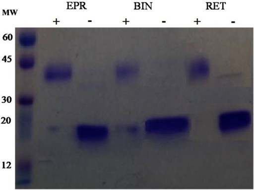 Sodium dodecylsulphate–polyacrylamide gel electrophoresis (SDS-PAGE) purification of Eprex®, Binocrit®, and Retacrit® before (+) and after (−) PNGase F digestion. BIN Binocrit®, EPR Eprex®, MW molecule weight, RET Retacrit®