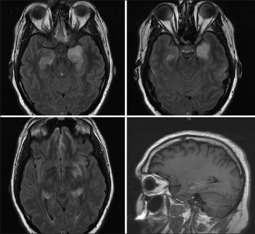 Axial T2 flair magnetic resonance images demonstrating hyperintensity in the bilateral mesial temporal lobes left greater than right, as well as contrast enhancement, in right mesial temporal lobe on sagittal section