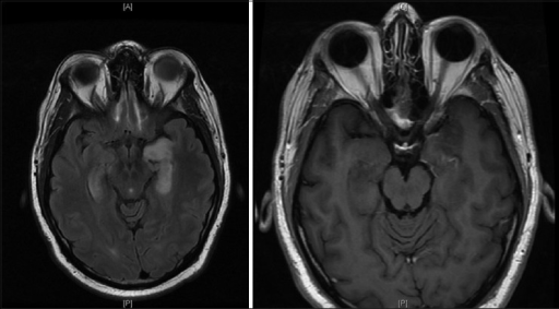 Axial magnetic resonance T2 flair image on the left and postcontrast T1 image on the right showing interval improvement in enhancement pattern with stable hyperintensity of bilateral mesial temporal lobes