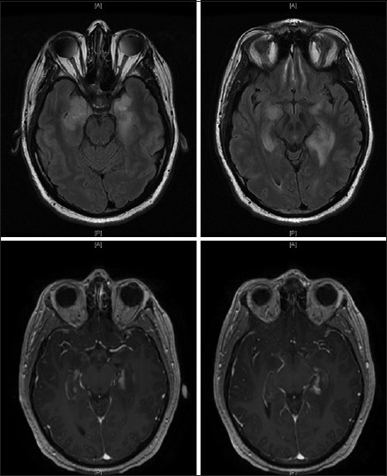 Preoperative magnetic resonance images 2 months after discharge. T2 signal changes and contrast enhancement pattern has increased, since the last magnetic resonance imaging scan