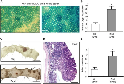The intestinal epithelium of Bcat mice has increased susceptibility to mutagen-induced carcinogenesis. (A) Representative methylene blue-stained large intestine of Wt and Bcat mice 5 weeks after the last of six consecutive azoxymethane (AOM) injections (scale bar=400 µm). (B) Enumeration of aberrant crypt foci in the colonic epithelium of Wt and Bcat mice (mean±s.d., n=15 mice, *P<0.05). (C) Photomicrographs of longitudinally opened and pinned out colons from Wt and Bcat mice 16 weeks after last injection of AOM (scale bar=1 cm). (D) Hematoxylin and eosin stain of a representative colonic adenoma excised from a Bcat mouse 16 weeks after the last AOM injection (scale bar=20 µm). (E) Enumeration of macroscopically visible adenomas in AOM-challenged Wt and Bcat mice (mean±s.d., n=10-11 mice, *P<0.05).