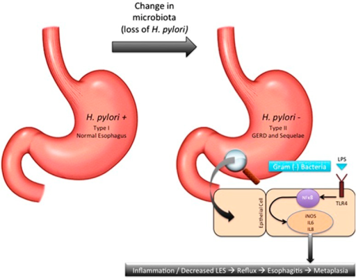 Gut microbiota and its influence on esophageal adenocarcinoma. Type-microbiota (Gram-positive predominant) with H. pylori provides a neutral esophageal environment. Type-II microbiota (Gram-negative predominant) with loss of H. pylori invokes a pro-inflammatory state in two ways. First, loss of H. pylori allow for increased acid secretion resulting in gastroesophageal reflux disease and its sequelae. Second, predominance of Gram-positive bacteria upregulate the pro-inflammatory cascade due to the interaction between lipopolysaccharide and Toll-like receptor 4.