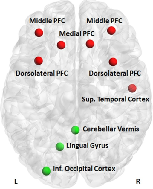 Discriminative clusters. Clusters discriminating patients with bipolar disorder from their relatives with major depressive disorder (red) or their healthy relatives (green); PFC, prefrontal cortex.