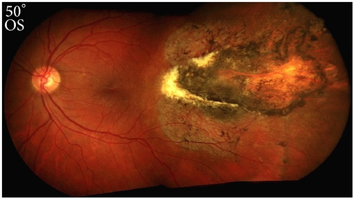 Color Fundus Photograph Of The Patients Left Eye Demonstrating A Comet Shaped Temporal Chorioretinal Scar