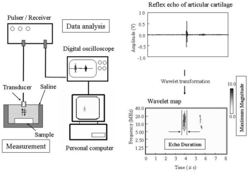 Schematic illustration of the articular cartilage analysis and measurement methods of the cartilage samples. A reflex echogram of articular cartilage and a wavelet map are shown. The maximum magnitude is indicated by the gray scale and the echo duration is defined as the length of time for which 95% of the echo signal is detected.