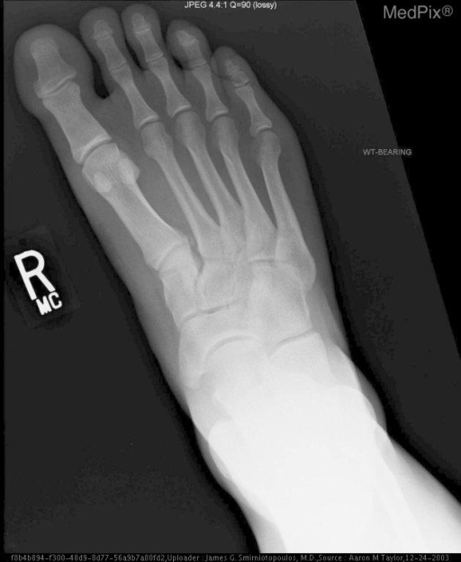 Radiographs of the affected foot taken several months prior to the injury