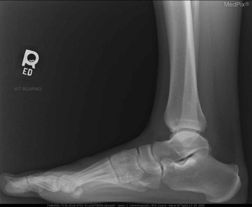 Post-injury radiographs of the foot.  There has been interval retraction of the sesamoids since the pre-injury radiographs were taken