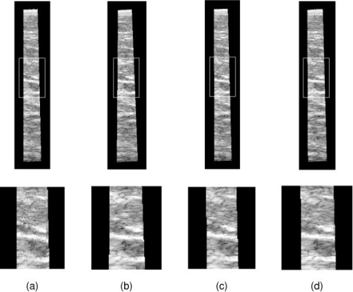 Reslice images of beef data set 1. The images show reslices through beef data set 1. The upper row of reslices are along the length of the data, showing the length and tilt. The lower row shows enlarged versions of the outlined region, highlighting the fine scale accuracy. (a) Position sensor only reconstruction. (b) Sensorless only. (c) Six degree-of-freedom correction. (d) Orientation-only correction.