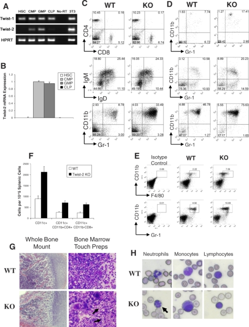 Twist-2–Deficient Mice Have Significant Increases in Multiple Myeloid Cells in Multiple Organs(A and B) Semiquantitative (A) and quantitative (B) RT-PCR of sorted hematopoietic progenitor populations showing constitutive expression of Twist-2 in GMP and CMP populations. Data are normalized to 18s rRNA internal controls and representative of two independent experiments. Error bars indicate the standard deviation (SD).(C) Splenocytes of Twist-2 KO and WT littermates were analyzed by flow cytometry. Results are representative of eight independent pairs of mice analyzed. Splenic CD4+ and CD8+ T cells (upper panel), IgM+ and IgD+ B cells (middle panel), and CD11b+ and Gr-1+ granulocytes and macrophages (lower panel) are shown.(D) Flow cytometry showing expansion of CD11b+Gr-1+ myeloid cells in peripheral blood (upper panel), liver (middle panel), and BM (lower panel) of Twist-2 KO mice representative of six independent experiments.(E) Flow cytometric analysis of splenocytes showing the expansion of Gr-1lowCD11b+ F4/80high macrophages (upper panel) and F4/80lowCD11b+Gr-1high neutrophils (lower panel) in Twist-2 KO mice representative of three independent experiments.(F) Absolute cell counts of CD11c+ cells and two major DC subtypes, CD11c+CD11b+CD4+ and CD11c+CD11b−CD8+ cells, are both increased in Twist-2 KO spleen. Error bars indicate SD.(G) Images of whole bone mounts stained with H&E (left panels). BM touch preps stained with Wright-Giemsa (right panels) show higher numbers of mature myeloid cells in the Twist-2 KO BM.(H) Images of peripheral blood smears with Wright-Giemsa stain showing hypersegmented neutrophils and enlarged monocytoid cells in Twist-2 KO mice. Images are representative of four independent sets of peripheral blood smears. The arrow indicates the hypersegmented nuclei of the neutrophils.