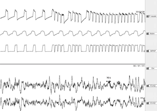 Polysomnography recording (2min) of a subject with normal ventilation under NPPV during slow-wave sleep [14].