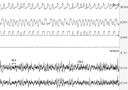 Polysomnography recording (2 min) of asynchrony in slow wave sleep with micro-arousals [14].