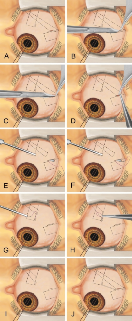 Schematic representation of the surgical technique for MISS inferior obliquus recession. After applying a limbal traction suture to expose the temporal inferior quadrant of the eye globe, a radial cut is performed over the insertion of the inferior obliquus muscle (a). A second cut is applied where later the reinsertion will be performed. With blunt Wescott scissors the inferior obliquus insertion is separated from the surrounding tissue (b). Then, the insertion is completely detached (c). Now, one single suture is applied to the anterior third of the detached muscle insertion (d). Afterwards, a blunt cannula is passed through the second cut, the reinsertion site opening, and advanced in order to get out through the first cut (e). The needle is gently inserted in the cannula until it is fixed (f). Now, the cannula is retracted (g) and the scleral fixation is performed (h). The surgical procedure is finished by applying single sutures to each of the two small cuts (i). If a better visualization is needed, the two small cuts can be joined to form one large opening (j)