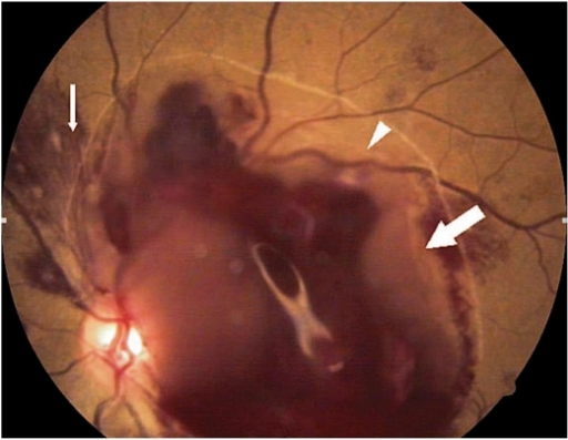 Color fundus photograph of the left eye showing Roth spots (small arrow), border of the posterior hyaloid (arrowhead), and a large subhyaloid hemorrhage (large arrow).