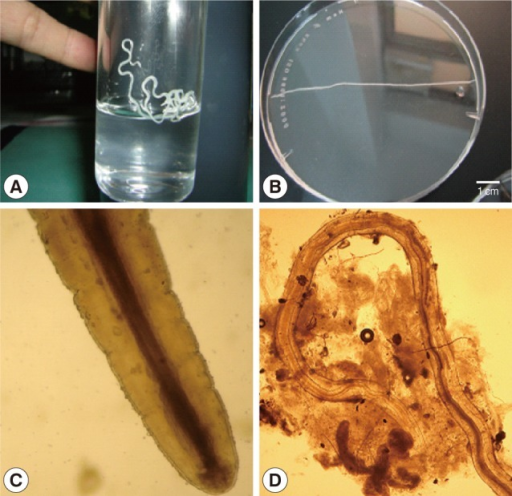 Dirofilaria repens collected from the conjunctiva (A, B) and subcutaneous tissue (C, D) of humans in Vietnam. (A) A female worm from the conjunctiva of a patient. (B) Another specimen from another patient. (C) Anterior end of a worm showing the mouth and esophagus (×100). (D) Posteror part of a female worm extracted from the subcutaneous tissue of a patient (×40).