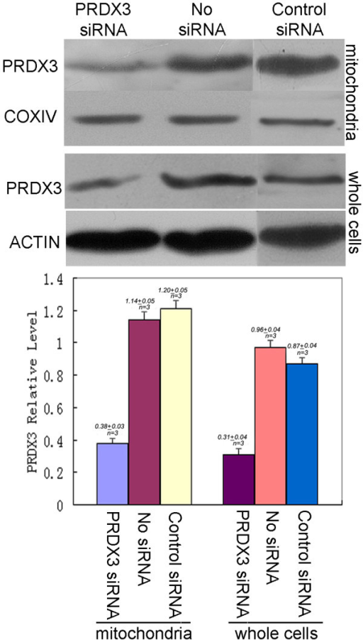 Effects of PRDX3 siRNA transient transfection on the PRDX3 expression of metastatic 5-8F cells. Suppression of PRDX3 expression in the levels of mitochondria and whole cells of the metastatic 5-8F cells treated with siRNA relative to without siRNA and control siRNA treatments. The top shows the Western blotting image. The bottom shows the quantitative comparison of the digitized Western blotting image. COXIV, a marker protein of mitochondria, was used as a reference standard protein when mitochondrial protein sample was analyzed with Western blot. ACTIN that is mainly expressed in the cytoplasm was used a reference standard protein when whole-cell protein sample was analyzed with Western blot. Western blot experiments were carried out triply (n = 3).