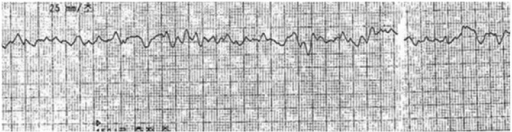 Initial electrocardiogram recorded by automated external defibrillator shows ventricular tachycardia.