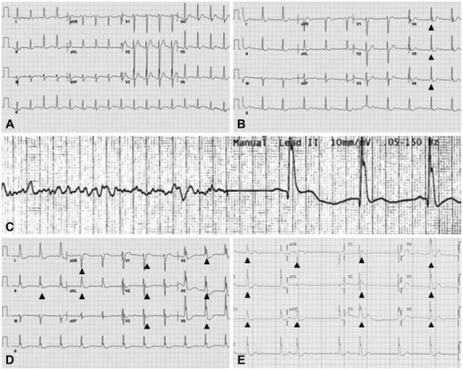 Sequence of electrocardiogram (ECG) changes. A: initial ECG at our hospital shows sinus tachycardia. B: soon after therapeutic hypothermia started, Osborn waves appear in lead II and V 4-6 (arrows). C: recurrent ventricular fibrillation occurrs. D and E: as time went on, Osborn waves became prominent in diffuse leads and atrial fibrillation also appeared.