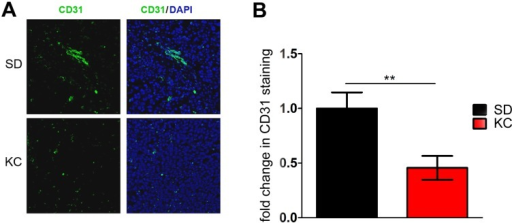 Analysis of tumor microvasculature components and gene expression.(A) CD31 immunostaining of tissue harvested at 21 days post-implantation. Representative images are shown. (B) Quantification of CD31 staining was performed on 2 independent tumors from each group. Data calculated as the average pixel density in 5 random, 200x fields within the same tumor and represented as a fold change from SD (**p < 0.01).