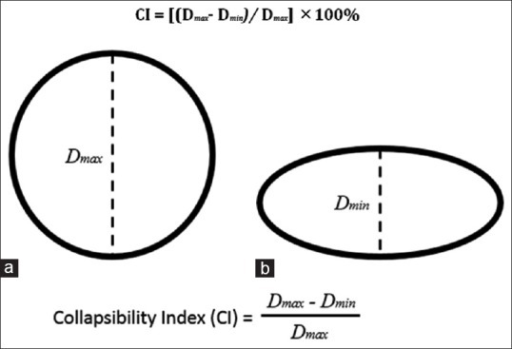 Schematic representation of venous collapsibility index computations