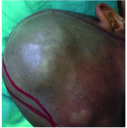 Preoperative image showing frontal and parietal swellings.