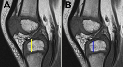 Sagittal T1-weighted magnetic resonance images demonstrating how tibial epiphyseal height measurements were obtained. (A) Total height, including ossified and cartilaginous anlage components (yellow line). (B) Ossified component only (blue line).