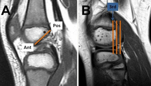 Methods of selecting coronal images for lateral femoral condylar width measurement. (A) Method 1: Sagittal T1-weighted magnetic resonance image at the Blumensaat line (line). One fourth the distance posterior (Pos) to anterior (Ant) was ascertained (asterisk), and the localizer function provided the corresponding coronal image for measurement. (B) Method 2: Sagittal T1-weighted image showing the first 3 coronal slices through the lateral femoral condyle. The coronal image from the third slice was used for measurement.