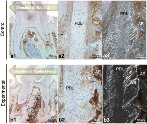 Immunohistochemistry for bone sialoprotein (BSP) of control and experimental groups. BSP was evenly distributed in primary and secondary cementum as well as alveolar bone in control group (a1). Similar morphological appearance was noticed in experimental groups. However, there are some distinct features to be noticed. Some light-brown stains appear to be associated with bone protrusions (marked with dotted lines in b2, b3) whereas the parent bone shows a strong immunostaining with a mottled appearance. Both control and experimental groups show that BSP is absent in PDL region. This is in accordance with immunolocalization results reported by McKee and Nanci [Ref Cooper et al., 2006]. From polarized microscopic images, the birefringence is more prominent in the cementum–PDL interface and alveolar bone, suggesting the presence of many well aligned collagen fibers. Some birefringence is also noticed in the newly formed bone region for experimental group, indicating strain-mediated modeling process of the bone when subject to strain. These observations suggest strain prompt new bone formation from alveolar bone region at the PDL–bone interface. Enclosed boxes in panels a1 and b1 represent regions, which are tension dominating and shown at higher magnification in panels a2 and b2. Panels a3 and b3 are correspondent to a2 and b2 respectively, when analyzer and polarizer are applied. AB: alveolar bone, PDL: periodontal ligament, C: cementum, NB: new bone, V: blood vessel.