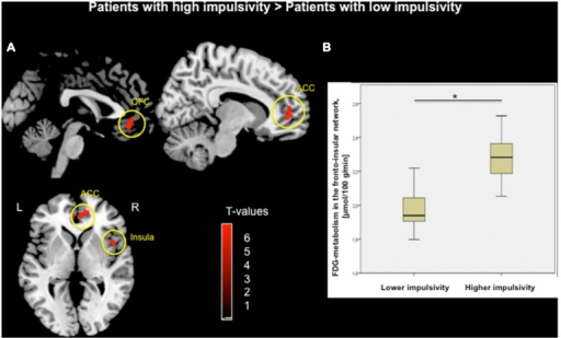 (A) Voxel-wise group comparison of FDG-metabolism generated by independent t-test in SPM8. Red maps illustrate increased metabolism in PD patients with higher impulsivity compared to PD patients with lower impulsivity in the orbitofrontal cortex (OFC), anterior cingulate cortex (ACC), and right insula (p < 0.05, FWE corrected in cluster level, bars represent range of t-values). (B) Group difference based on the averaged FDG-metabolism of the fronto-insular network including the OFC, ACC, and insula within (*p < 0.001).