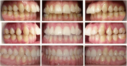 Pre- and post-photos of one of the patients treated in this study