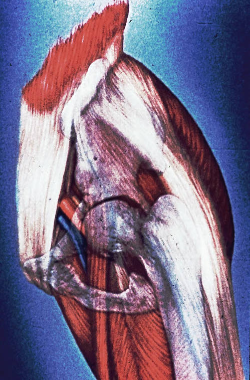 ilium; posterior inferior iliac spine; acetabulum; femur; greater trochanter; pubic crest; pubic tubercle; ischiopubic ramus; ischium; obturator foramen; gluteus maximus muscle; tensor fascia lata muscle; iliotibial tract; piriformis muscle; sartorius muscle; femoris muscle; adductor longus muscle; adductor brevis muscle; blood vessels; femoral artery; femoral vein; femoral sheath; femoral nerve; external oblique muscle